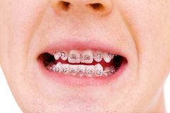Teeth with braces. Isolated Royalty Free Stock Photo