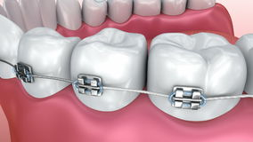 Teeth with braces isolated on white. Medically accurate stock footage