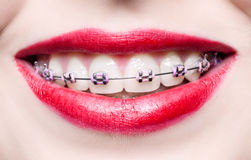 Teeth with braces. Macro photography Royalty Free Stock Photo