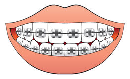 Teeth with braces. Mouthful of teeth with brand new braces Royalty Free Stock Photo