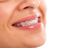 Teeth with braces. Perfect teeth with braces isolated Stock Images