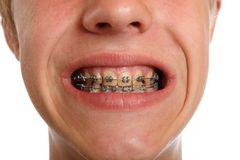 Teeth braces Stock Images