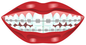 Teeth with braces. Vector illustration of woman teeth wearing braces Stock Photo