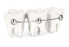 Teeth with braces Royalty Free Stock Image