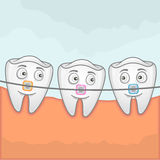Teeth with braches. Vector illustration of teeth using braches for treatment Royalty Free Stock Image