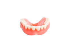 Teeth bridgework Stock Photography