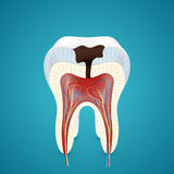 Teeth caries in cutaway Royalty Free Stock Image
