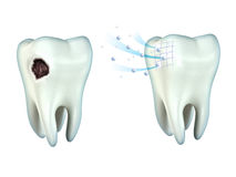 Teeth cavity Royalty Free Stock Photography
