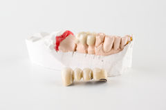 Teeth from ceramics. Artificial teeth are made of ceramics for the patient Royalty Free Stock Photography