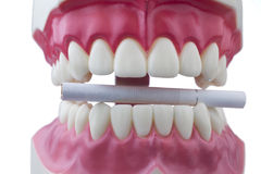 Teeth and a cigarette. Dental mold and a cigarette on a white background Royalty Free Stock Image