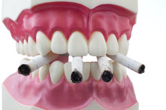 Teeth and cigarettes. Dental mold and cigarettes on a white background Royalty Free Stock Photos
