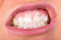 Teeth cleaning Stock Images