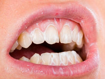 Teeth cleaning Stock Image