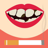 Teeth damaged by cigarette stock illustration