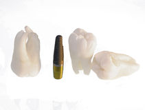 Teeth and dental implant. Wisdom teeth and dental implant Royalty Free Stock Image
