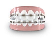 Teeth Fitted With Braces Royalty Free Stock Photography