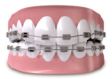 Teeth Fitted With Braces Close Stock Photography