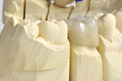 Teeth in the foreground. Close-up of fused ceramic corona, one molar tooth Royalty Free Stock Photo