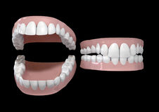 Teeth And Gums Open and Closed. Two different sets of human teeth set in gums on a dark background, one open, one closed Stock Photography