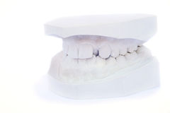 Teeth gypsum model Stock Photo