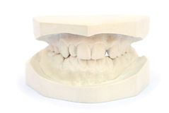Teeth gypsum model Stock Photos