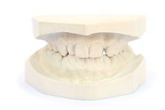 Teeth gypsum model. Isolated on white background Stock Photos