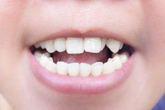 The teeth. Royalty Free Stock Photo