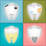 Teeth - Illustration  Royalty Free Stock Images