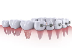 Teeth and implant Royalty Free Stock Photo