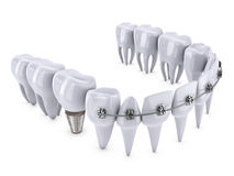 Teeth and implant Royalty Free Stock Photography