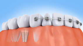 Teeth and implant Stock Image