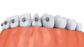 Teeth and implant Stock Photo