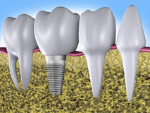 Teeth and implant Royalty Free Stock Photos