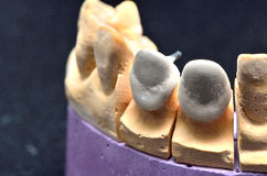Teeth implant model Stock Photography