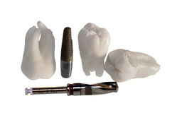 Teeth and implants Royalty Free Stock Images