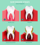 Teeth infographic vector Stock Photos