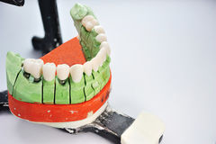 Teeth inserted in prosthesis ceramic model Royalty Free Stock Image