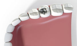 Teeth With Lead Filling Royalty Free Stock Photos