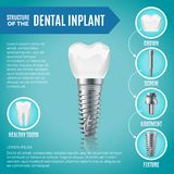 Teeth maquette. Structural elements of dental implant. Infographic for medicine poster vector illustration