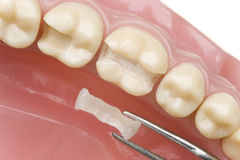 Teeth model. With new inlay Stock Photos
