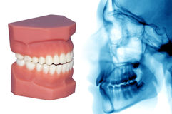 Teeth model and x-ray isolated on withe Stock Image