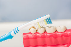Teeth model and toothbrush Stock Photography