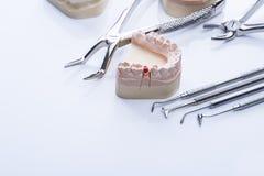 Teeth mold and basic dental tools on white table Stock Photos