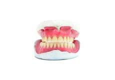 Teeth mold Stock Photo