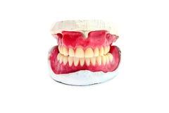Teeth mold Stock Image