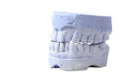 Teeth mold Royalty Free Stock Images