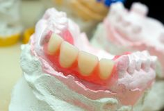 Teeth mold and prosthetic devices  close-up. Stock Photo