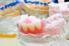 Teeth mold and prosthetic devices close-up. stock photography