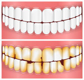 Teeth, Mouth, Dentistry. Vector Illustrations of Healthy and Unhealthy Teeth. Best for Dentistry, Oral Hygiene, Medicine concept Stock Illustration