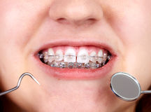 Teeth with orthodontic brackets. Royalty Free Stock Images
